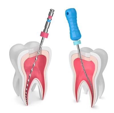 آشنایی با مراحل عصب کشی دندان,نحوه ی عصب کشی دندان
