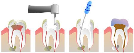 ریشه دندان,مراحل عصب کشی دندان