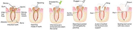 درمان و ترمیم دندان,عصب کشی چیست