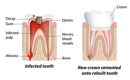 عصب کشی دندان چیست,دوام دندان عصب کشی شده