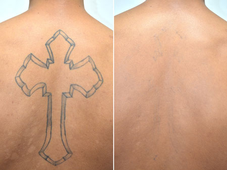 اسکین سازی,اسکین سازی پوست, اسکین سازی تاتو