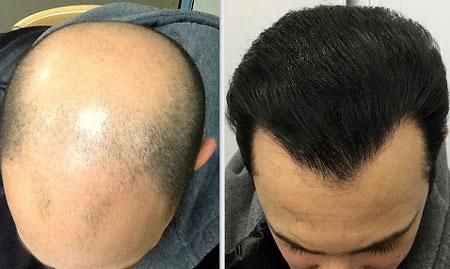 بهترین فصل برای کاشت مو ,بهترین زمان و فصل کاشت مو