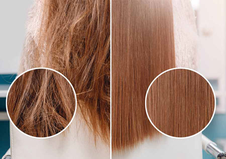 تراپی مو ,تراپی مو چیست,انواع تراپی مو