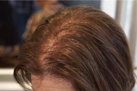 دلیل ریزش موها بعد از رنگ زدن, علت ریزش مو بعد از رنگ زدن, رنگ مو و ریزش مو