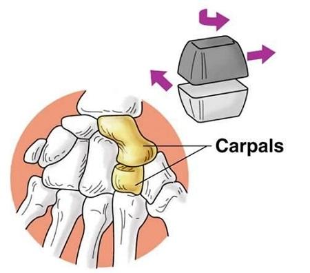 مفاصل بدن انسان,مفاصل سینوویال,مفصل لغزنده