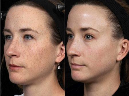 لیزر پوست صورت, لیزر پوست, عوارض لیزر پوست