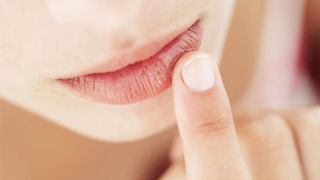 خشکی لب, درمان خشکی لب, علت خشکی لب