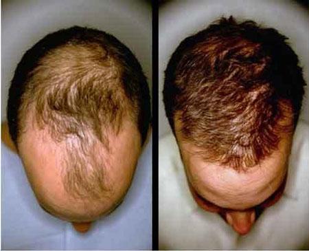 دارو هایی که کچل تان می کنند,داروهایی که ریزش مو میآورند,کدام داروها باعث ریزش مو میشوند
