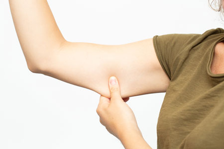 arm lift done 4 لیفت بازو چیست و چگونه انجام می شود؟