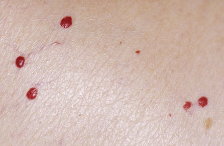 خال قرمز روی پوست,خال قرمز روی پوست نشانه چیست,خال قرمز پوستی نشانه چیست