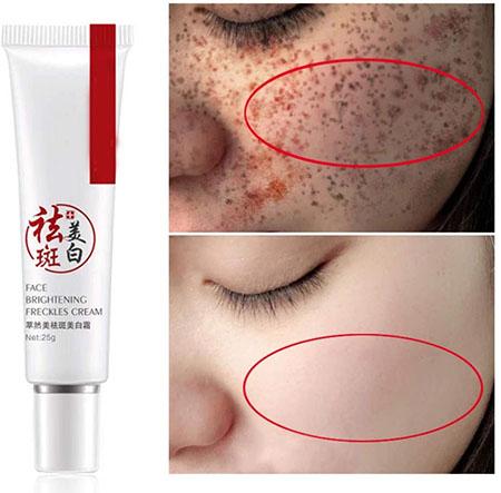 طرز استفاده از کرم ضد لک, ترکیبات کرم ضد لک, عوارض کرم ضد لک