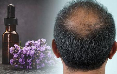 روغن اسطوخودوس, طریقه مصرف روغن اسطوخودوس برای مو, خاصیت روغن اسطوخودوس برای مو