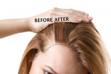 مراقبت بعد از کاشت مو, چه مدت بعد از کاشت مو میتوان رنگ کرد, بعد از کاشت مو میتوان رنگ کرد