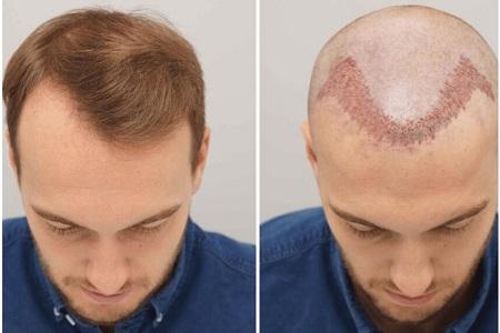 زمان رنگ کردن مو پس از کاشت مو, فایده رنگ کردن موها قبل از کاشت مو, مراقبت بعد از کاشت مو