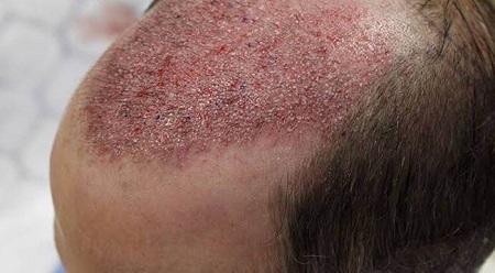 درمان عفونت بعد از کاشت مو , علائم عفونت بعد از کاشت مو , عفونت پوست سر بعد از کاشت مو