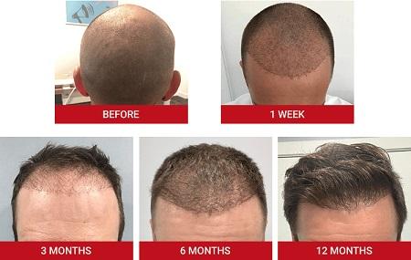 عکس عفونت بعد از کاشت مو , عفونت بعد از کاشت مو , درمان عفونت بعد از کاشت مو